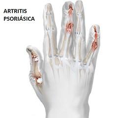 MSC Noticias - artritis-psoriasica Agencias Com y Pub Comstat Rowland Publicidad Salud