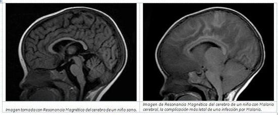 MSC Noticias - Imagen-Malaria-1 Agencias Com y Pub Contacto 20/20 Negocios Publicidad Salud