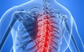 MSC Noticias - Esclerosis-Múltiple-320x198 Agencias Com y Pub Comstat Rowland Publicidad Salud